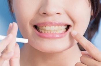 żółte zęby