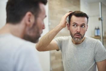 problem łysienia